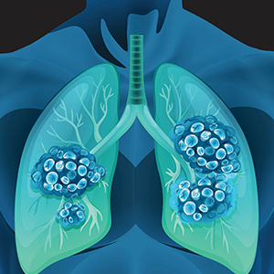 Illustrated Image of Lung with Abnormal Nodules