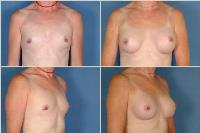 breastaugmentation-9