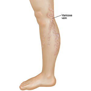 Varicose-Vein-for-web