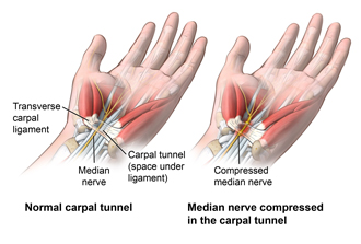 carpal-tunnel