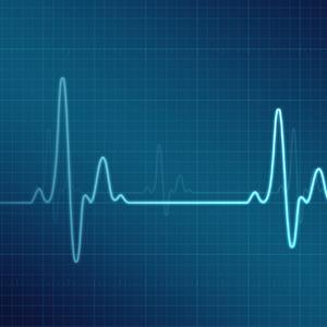Image of EKG