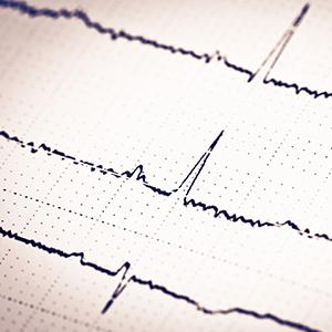 Image of EKG on paper