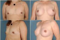 breastaugmentation-1