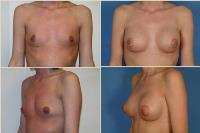 breastaugmentation-6