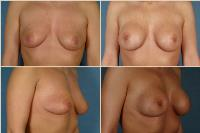 breastaugmentation-8
