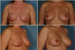 breastlift-2
