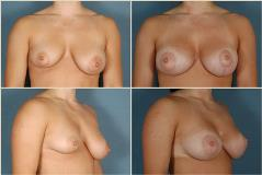 breastlift-3