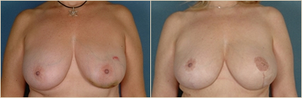breastreconstruction-1