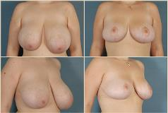 breastreductionsurgery-2