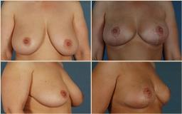 breastreductionsurgery-3