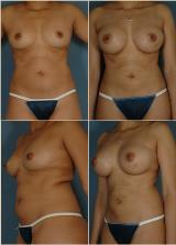 liposuction-1
