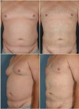 liposuction-2