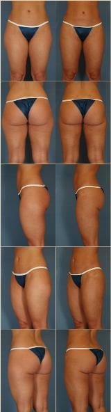 liposuction-5