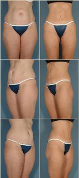 liposuction-6