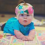 baby girl wearing orthotic helmet