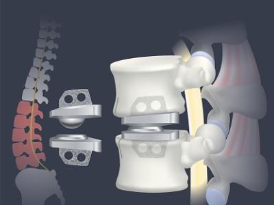 lumbar-artificial-disc-replacement-vector-id1146202654 (1)