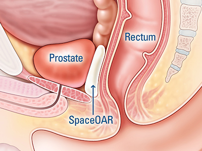 anatomical illustration of hydrogel placed between prostate and rectum