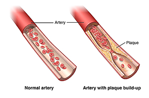 Atherosclerosis graphic