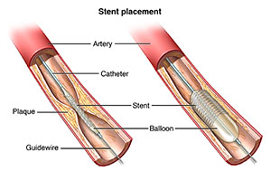 Stent PLAcement graphics