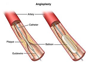 Angloplasty graphic