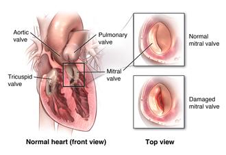 mitral-valve-heart