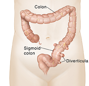 Diverticulitis forms in the lower part of the colon