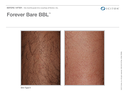 Forever Bare Before and After 1 WEB