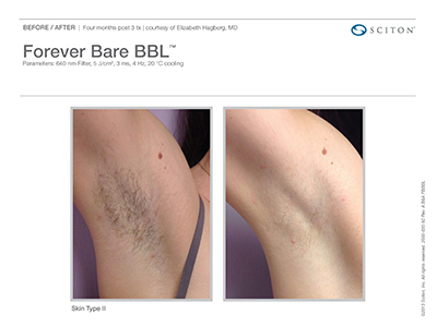 Forever Bare Before and After 4 WEB