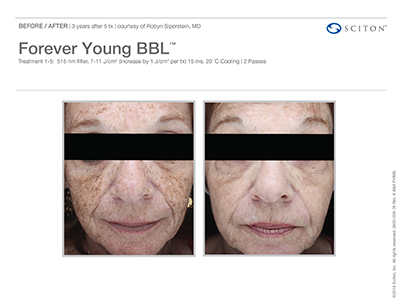 Forever Young BBL Before-After 1